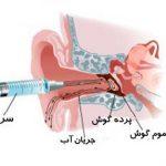 دستگاه ساکشن گوش
